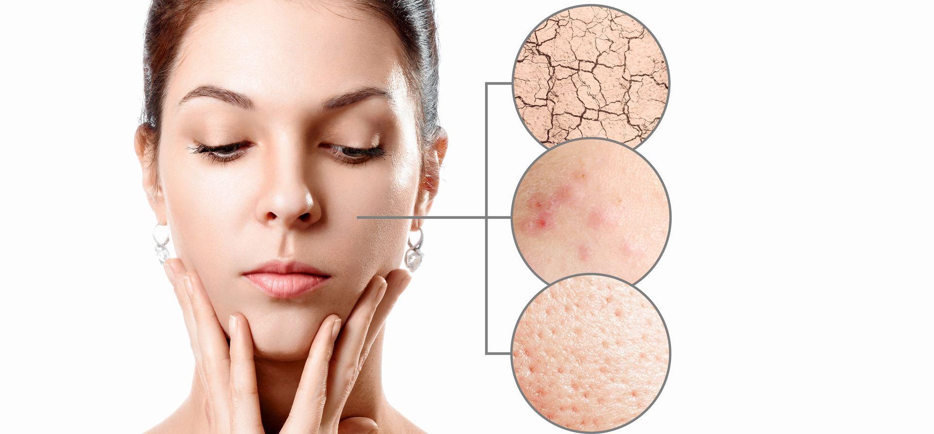 Преждевременное старение кожи и другие проблемы — жирная кожа, прыщи и угри