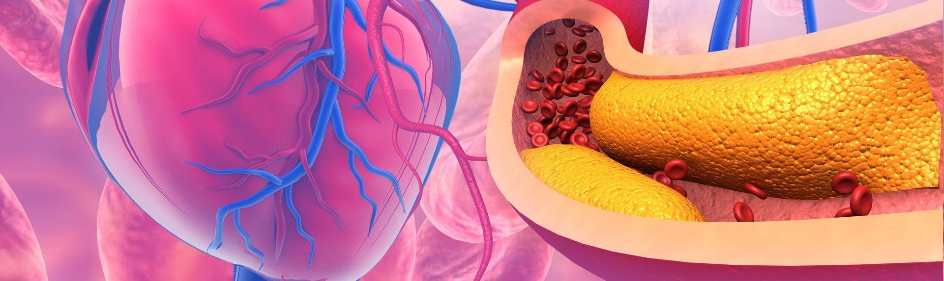 Малоподвижный образ жизни и вредные привычки, как они приводят к развитию атеросклероза?