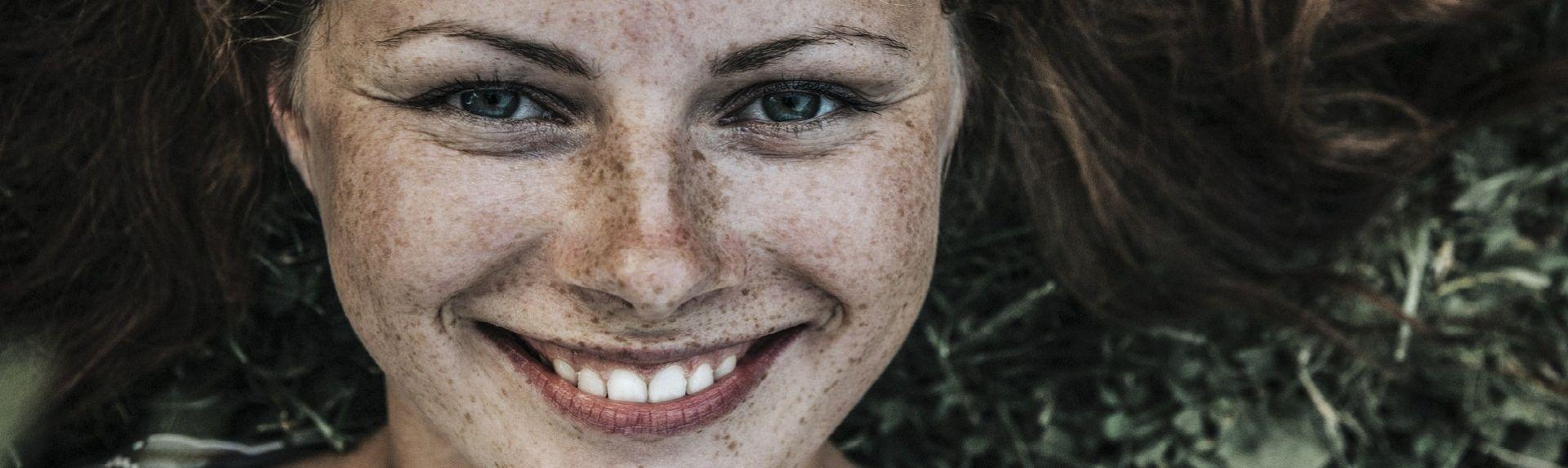 Пигментные пятна у женщин
